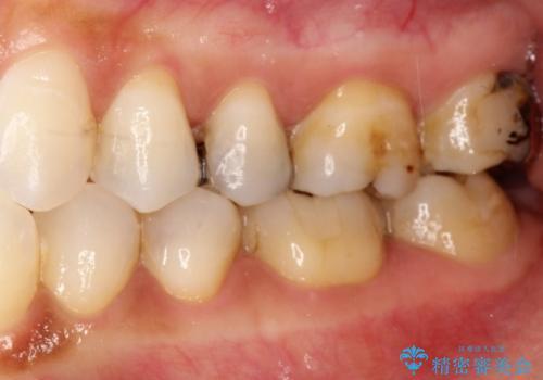 金属→セラミックへのやり直し 予想以上に深い虫歯とその処置の治療前