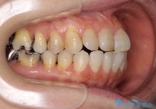 歯根が露出している歯の歯肉再生 根面被覆術の治療前