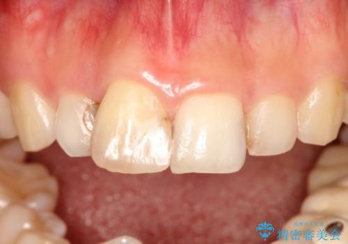 根管治療で変色した歯をセラミックで白くの治療前