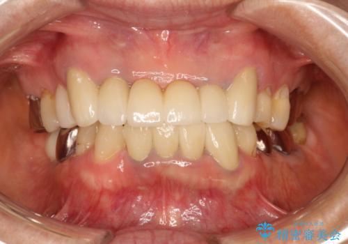 歯が割れた 抜歯をしてブリッジによる治療の症例 治療前