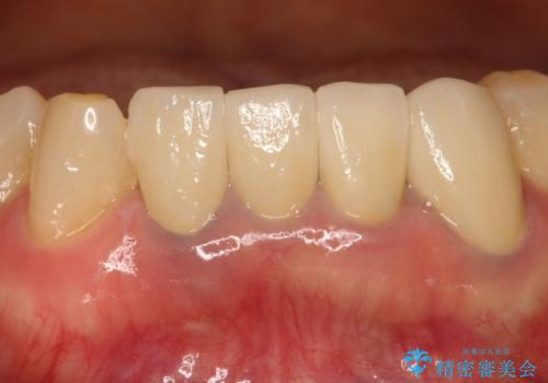 歯が割れた 抜歯をしてブリッジによる治療の治療前