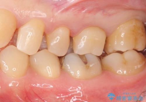 治療途中で放置 上の奥歯3本をセラミックインレーに 2年後も良好な状態ですの治療中