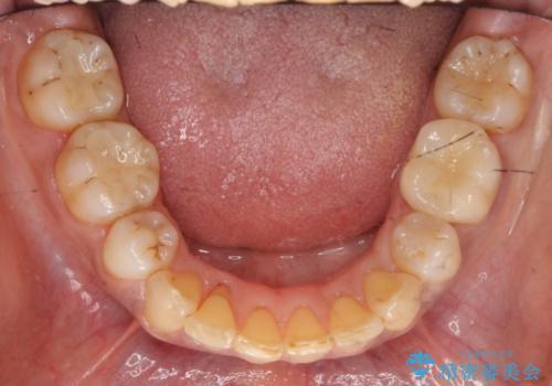 40代女性 全体的にしっかり虫歯を治療したい の治療後