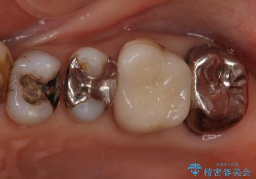 60代女性 銀歯の下が虫歯 隣も虫歯の治療中