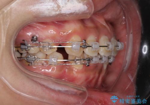 前歯のガタガタ・八重歯治したい ワイヤーによる矯正の治療中