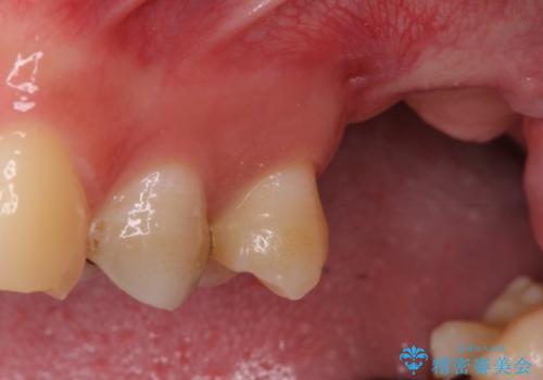 上顎臼歯部におけるインプラント治療の治療前