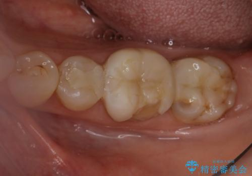 割れた奥歯の再修復 土台からの治療の治療前