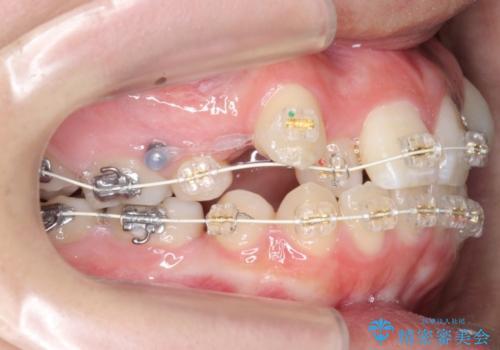 20代女性 八重歯をきれいに、前歯のがたがたの治療中