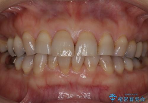 軽度のテトラサイクリン歯をホワイトニングでトーンアップの治療前