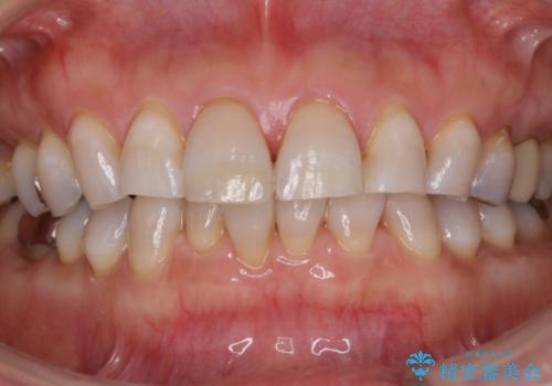 軽度のテトラサイクリン歯をホワイトニングでトーンアップの治療後