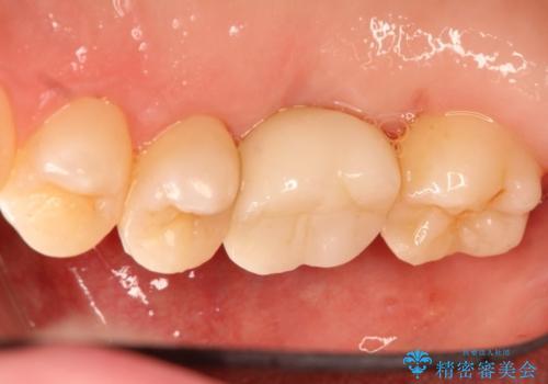 インプラントと部分矯正による奥歯のかみ合わせの改善の治療後