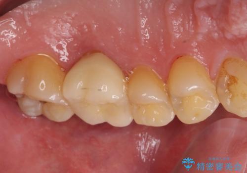 ぷくっと腫れた歯肉が気になる 根管治療とセラミックの治療後