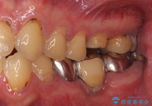 ぷくっと腫れた歯肉が気になる 根管治療とセラミックの治療中