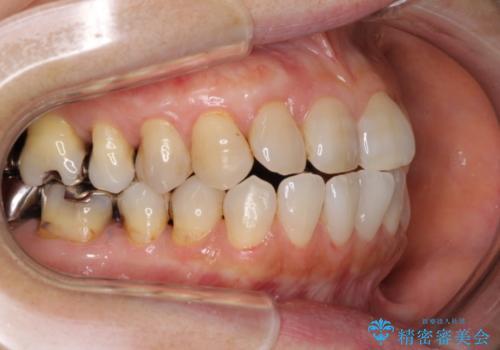 歯根が露出している歯の歯肉再生 根面被覆術の治療後
