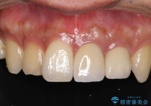 著しい変色歯をオールセラミックにの症例 治療後