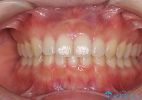 出ている前歯を引っ込めたい インビザラインによる矯正治療の治療後