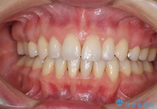出っ歯を治したい メタル装置による抜歯矯正の症例 治療後