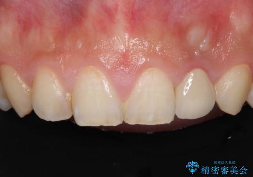 変色した前歯をオールセラミッククラウンにの治療後