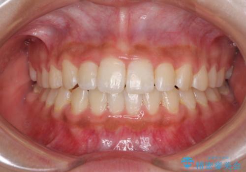 ワイヤー矯正とマウスピース矯正を併用して、短期間で歯列矯正の症例 治療後