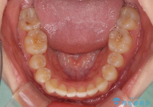ワイヤー矯正とマウスピース矯正を併用して、短期間で歯列矯正の治療後