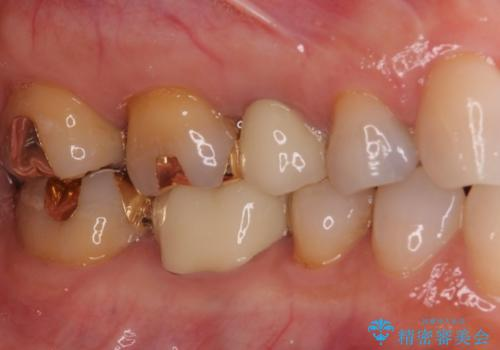 セラミッククラウンによる奥歯の虫歯治療 の症例 治療後