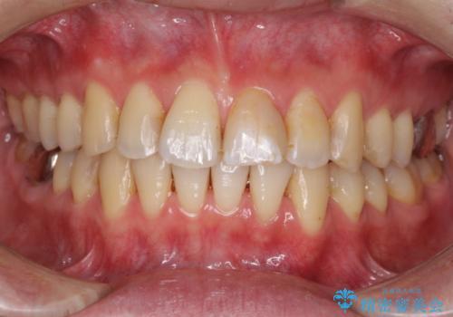 上下前歯のでこぼこをきれいに インビザラインによる歯列矯正の症例 治療後