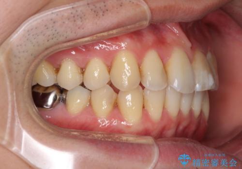 上下前歯のでこぼこをきれいに インビザラインによる歯列矯正の治療後