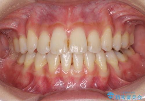 下の前歯が一本少ない ワイヤーによる出っ歯の矯正治療の症例 治療後