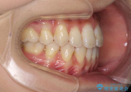 下の前歯が一本少ない ワイヤーによる出っ歯の矯正治療の治療後