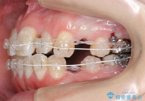 20代女性 前歯のがたがた 後ろに引っ込んでいる歯があるの治療中