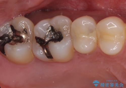 40代男性 銀歯を全て白くしたい マウスピース矯正も希望の治療前