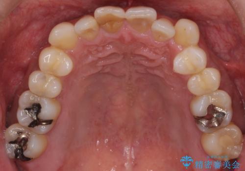 40代男性 銀歯を全て白くしたい マウスピース矯正も希望の症例 治療前