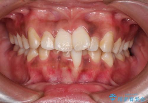 前歯のガタガタ・八重歯治したい ワイヤーによる矯正の症例 治療前