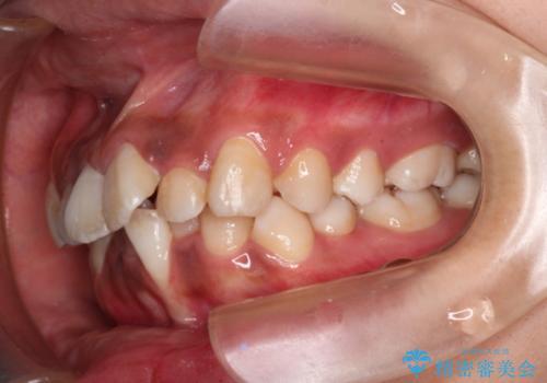 前歯のガタガタ・八重歯治したい ワイヤーによる矯正の治療前