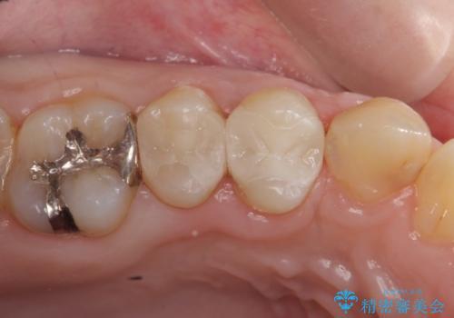 セラミックインレー 銀歯を白くの症例 治療後