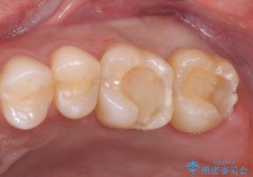 40代男性 銀歯を全て白くしたい マウスピース矯正も希望の治療中
