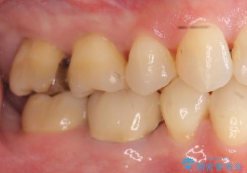 30代女性 総合歯科治療 矯正+セラミック+根管治療 の治療後