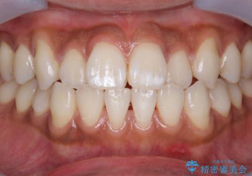 オフィスホワイトニングで歯を白くの症例 治療前