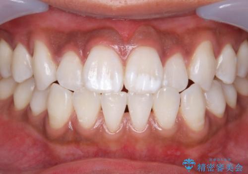 オフィスホワイトニングで歯を白くの症例 治療後