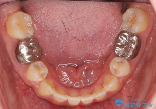 20代女性 前歯のがたがた 後ろに引っ込んでいる歯があるの治療後
