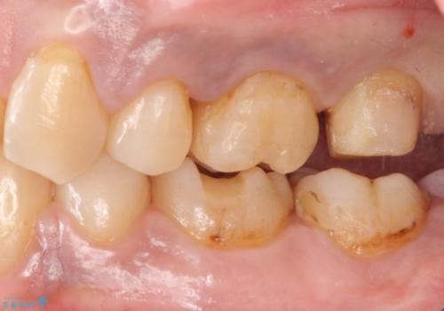 40代女性 全体的にしっかり虫歯を治療したい の治療中