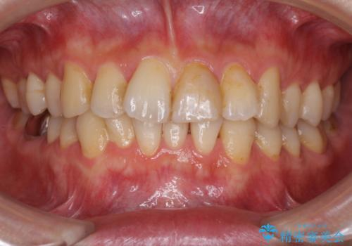 上下前歯のでこぼこをきれいに インビザラインによる歯列矯正の症例 治療前