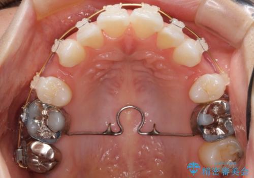 前歯を下げたい 矯正治療+つめもののやりかえの治療中