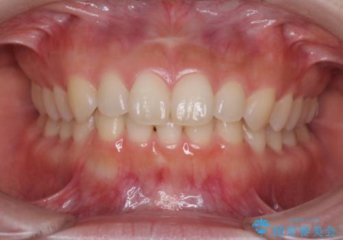 出ている前歯を引っ込めたい インビザラインによる矯正治療の症例 治療前