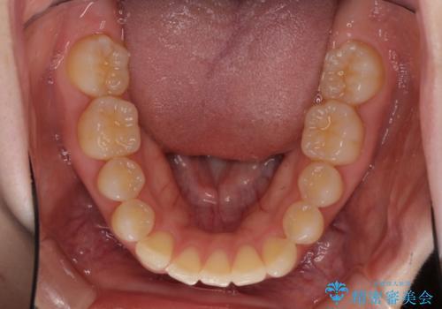 出ている前歯を引っ込めたい インビザラインによる矯正治療の治療前