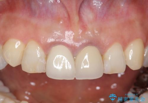 前歯をメタルフリーに オールセラミッククラウンの症例 治療前