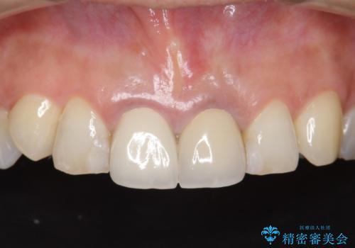 前歯をメタルフリーに オールセラミッククラウンの治療前