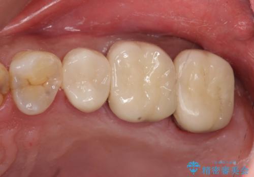 つめものが取れて放置 奥歯3本の治療の症例 治療後