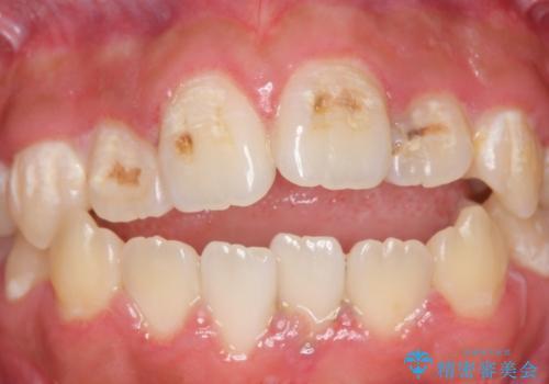 オールセラミッククラウン 前歯の補綴の治療前
