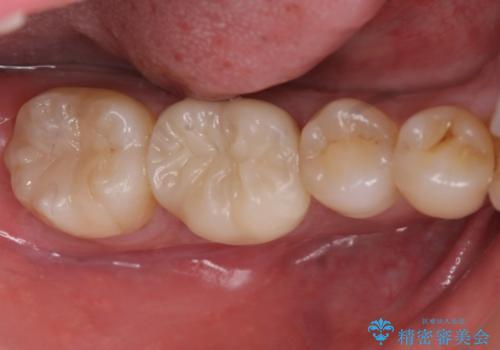 40代男性 銀歯を全て白くしたい マウスピース矯正も希望の治療後